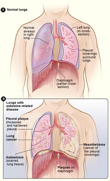 Normaalit keuhkot ja asbestisairaudet keuhkoissa